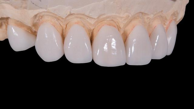 https://www.drkates.com/wp-content/uploads/2017/11/Permanent-Bridge-For-Teeth.png