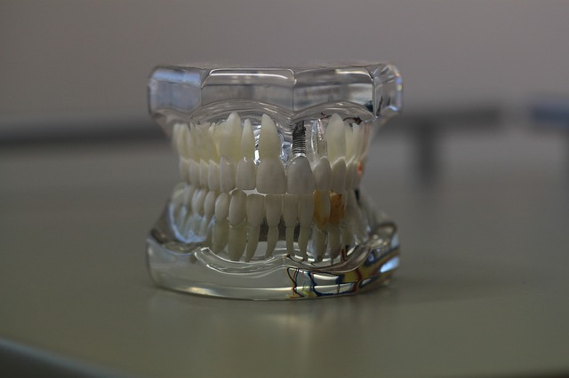 https://www.drkates.com/wp-content/uploads/2017/12/Dentures-2.jpg