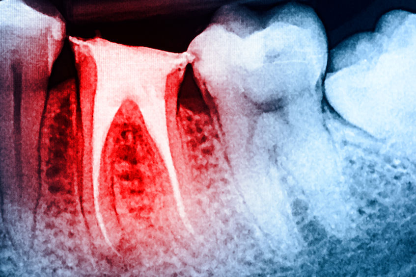 https://www.drkates.com/wp-content/uploads/2017/12/Root-Canal-Treatment.jpg