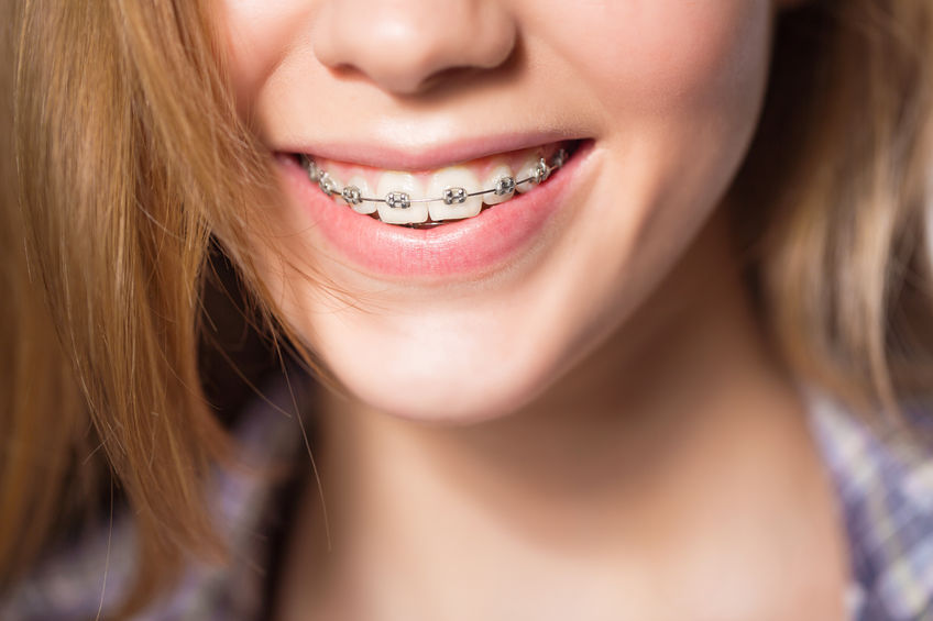 https://www.drkates.com/wp-content/uploads/2017/12/Traditional-Braces.jpg