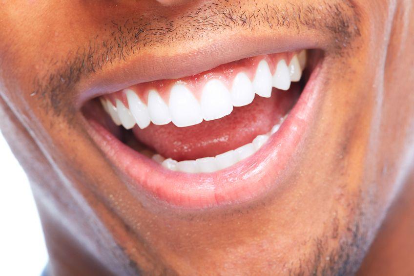 https://www.drkates.com/wp-content/uploads/2017/12/teeth-whitening-treatment.jpg